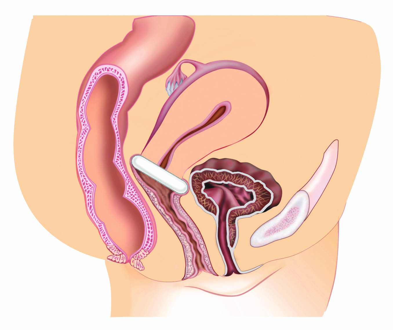 Current hormonal therapies for vulvovaginal
